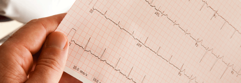 clinician reading ECG tracings
